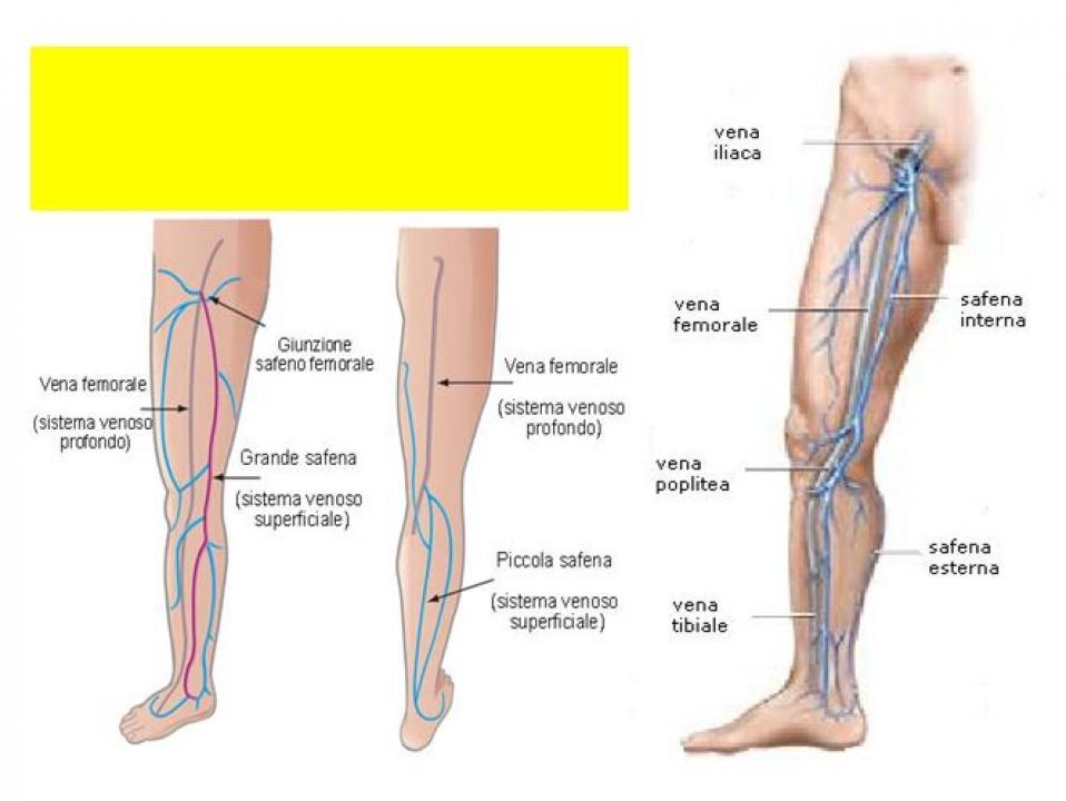 Reti vascolari varicosity