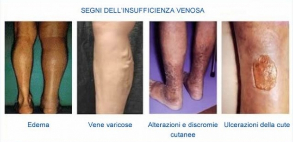 Varicosity sulla gamba sinistra su caviale