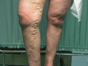 Quanto per operazione in eliminazione di varicosity