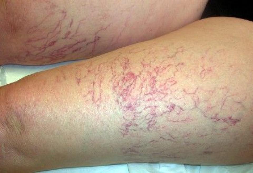 Sonography di doppler di arterie e vene di gambe